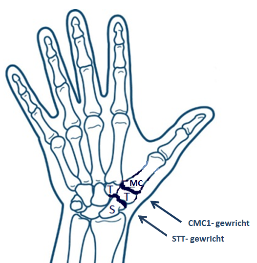 artrose in duim